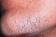 Manlig skäggväxt, före