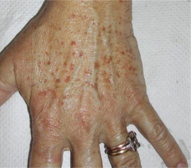 Pigmentfläckar på en hand före behandling.