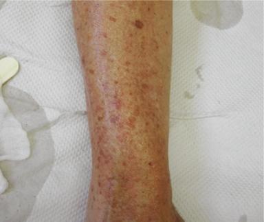 Arm med pigmentfläckar orsakade av ålder, före behandling.