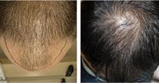 håravfall före och efter
