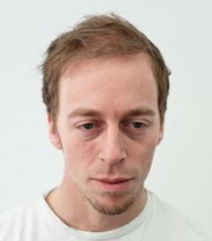 Man efter operation med 2943 hår