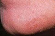 Manlig skäggväxt, efter