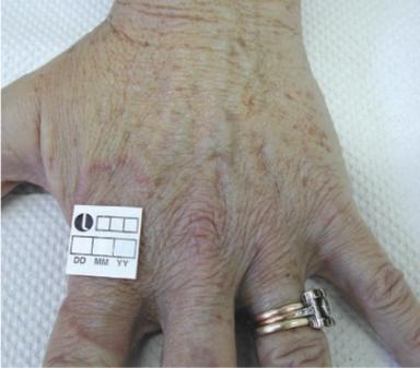 Samma hand 1 månad efter två behandlingar med fyra veckors mellanrum.