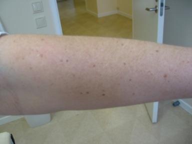 Arm med pigmentfläckar orsakade av sol, före behandling.