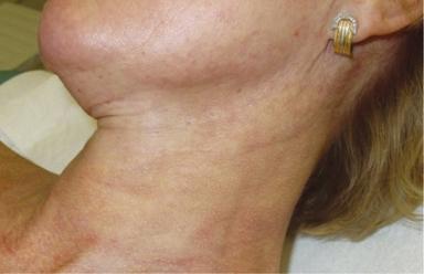 Samma hals en månad efter 5 behandlingar med fyra veckors mellanrum.
