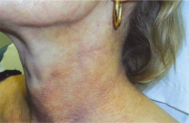 Hals med ytliga blodkärl före behandling.